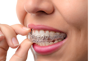 cosmetic-procedures-invisalign