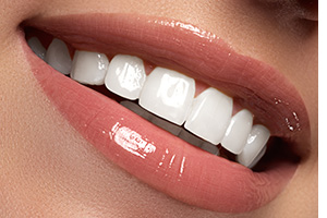 cosmetic-procedures-veneers