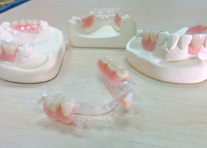denture-advanced-procedures
